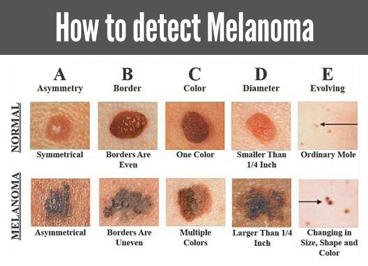 How to check if a mole is cancerous, cancer in moles, skin cancer signs