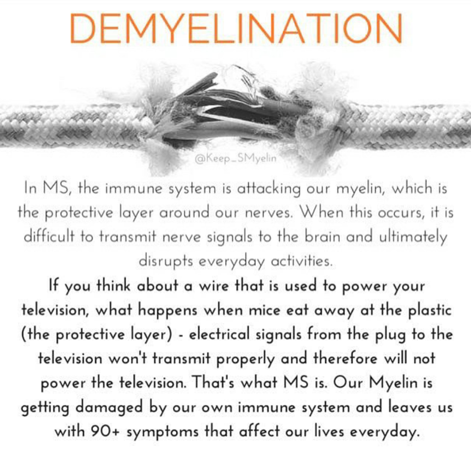 Living with MS - Demyelination