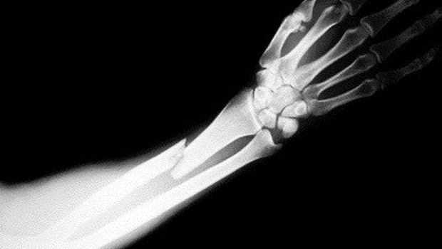6 Ways X-Rays Have Helped Us | Your World Healthcare ...