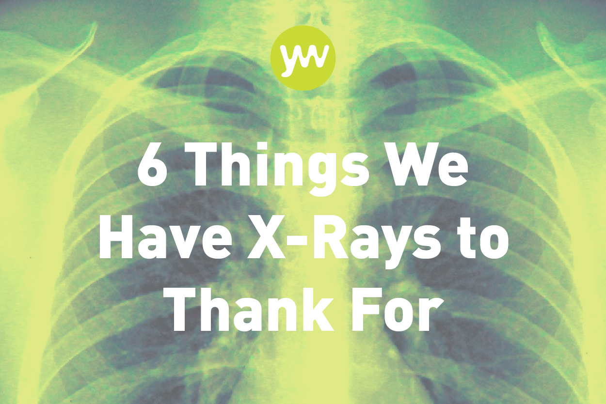6 Ways X-Rays Have Helped Us